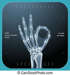 deux, ok, symbole, -, main, humain, rayon x