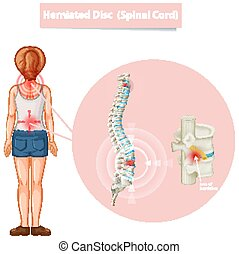 diagramme, herniated, projection, disque