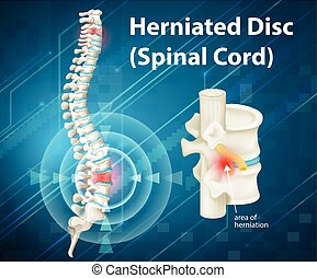 diagramme, projection, disque, herniated