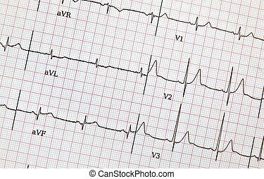 ecg, impression, rapport, ou, patient, santé coeur, vue, détails, battement, dehors