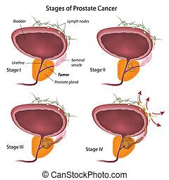 eps10, étapes, cancer prostate
