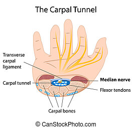 eps8, tunnel, carpien, syndrome