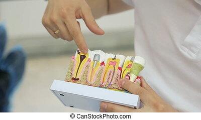 expliquer, disposition, aide, projection, il, dent, dentiste, carie, dents, problème, ou, structure