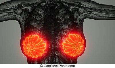 femme, cancer sein, balayage médical
