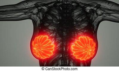 femme, cancer sein, balayage, monde médical