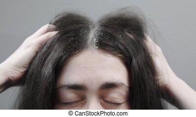 femme, close-up., elle, hands., tête, fortement, grattements, dandruff., concept, problems., cheveux sombres