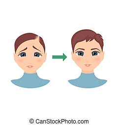 femmes, perte cheveux