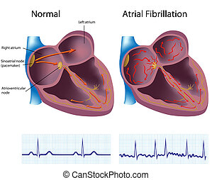 fibrillation, atrial, eps8