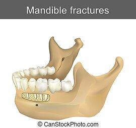 fractures, plus bas, anatomy., body., mandibule, face., strongest, infographic, plus grand, humain, partie, os