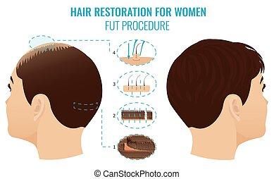 fut, perte cheveux, traitement