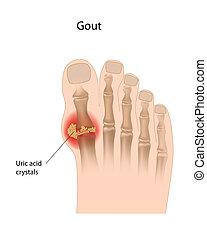 gout, orteil, eps10, grand