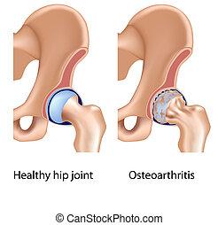 hanche, arthrose, jointure, eps8