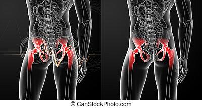 hanche, rendre, illustration médicale, jointure, douloureux, 3d