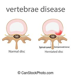 hernia., maladie, vertèbres