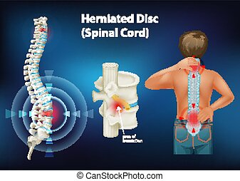 herniated, diagramme, projection, disque