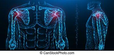 humain, disease., douloureux, polygonal, maladies, musculoskeletal, illustration, joint., vecteur, épaule, jointure, système