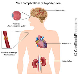 hypertension, complications, eps8