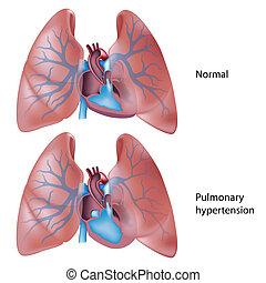 hypertension, pulmonaire, eps10