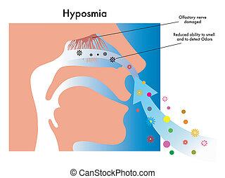hyposmia