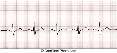 illustration, électronique, cardiogramme