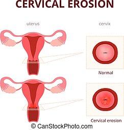 illustration, cervical, érosion, schématique