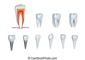 implants., ensemble, isolé, dents