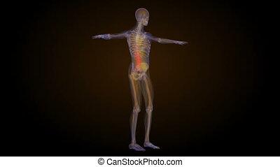 inférieur, douleur, squelette, dos, dos, animation, rayon x
