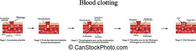 infographics., vecteur, sanguine, illustration, clotting.