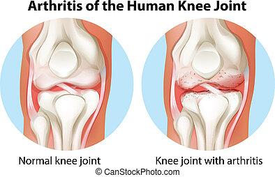 jointure, arthrite, genou humain