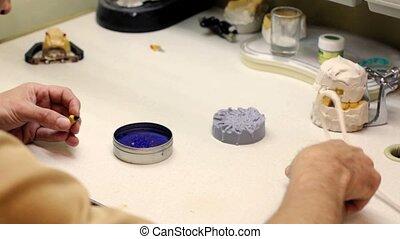 laboratoire, implants, dentaire