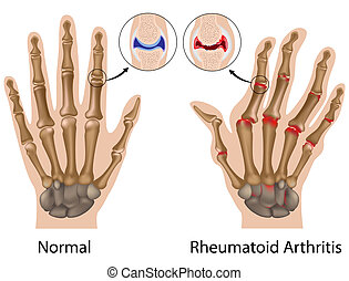 main, arthrite, rhumatoïde, eps8
