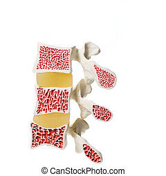 modèle, artificiel, ostéoporose