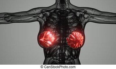 monde médical, femme, cancer, poitrine, balayage