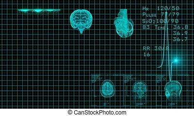 monitor., bleu, moniteur, coeur, ekg, seamless, beat., sain, ecg, boucle, spectacles