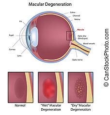 oeil, macular, dégénérescence