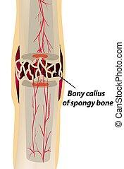 ossification., 3, illustration, isolé, arrière-plan., infographics., vecteur, guérison, callosité, fracture., os, étape