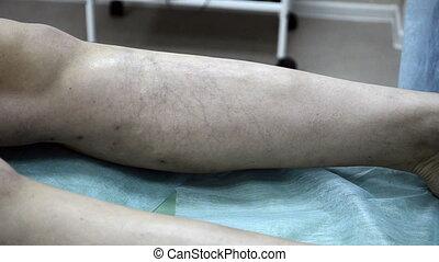patient, leg., monde médical, sclerotherapy, injection, procédure