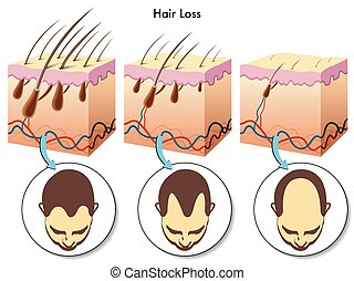 perte, cheveux