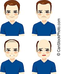 perte cheveux, mâle, étapes