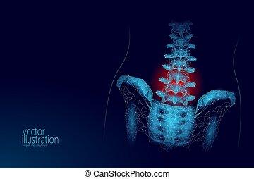 point, lombaire, humain, douleur, technologie, bleu, secteur, polygonal, avenir, bas, radiculitis, médecine, géométrique, douloureux, poly., hanche, triangle, illustration, ligne, particule, dos, vecteur, rouges