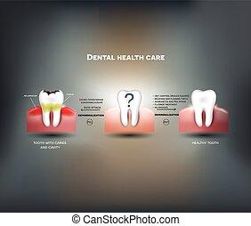 pointes, soin dentaire, santé