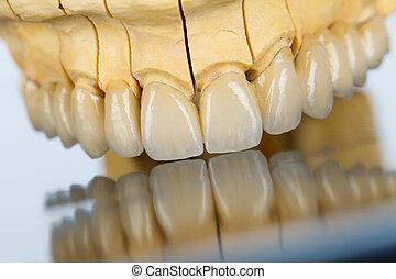 pont, dentaire, céramique, -, dents