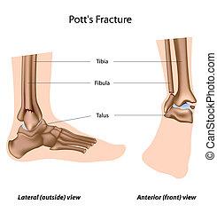 pott's, eps8, fracture