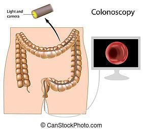 procédure, eps8, colonoscopy