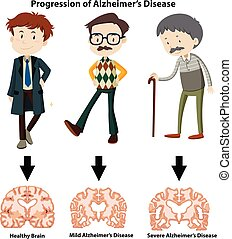 progression, maladie alzheimer