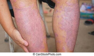 psoriasis, usage, propre, maladies, wounds., causé, médicaments, malades, leur, skin., lymphe, herbier, abnormalities, jambes