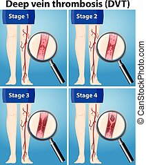 quatre, étapes, thrombosis, veine, profond