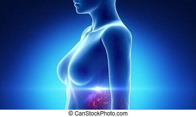 rayon x, bleu, femme, poitrine, anatomie
