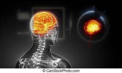 rayon x, l, cerveau, monde médical, humain, balayage