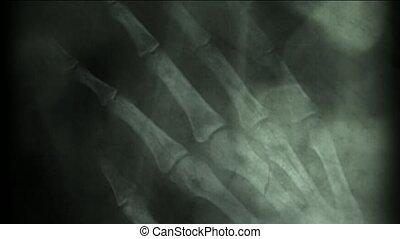 rayon x, résumé, squelette, doigt, pellicule, bone., arrière-plan., humain